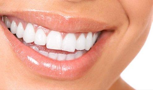 Igienista dentale cosa fa - Studio dentistico Motta Jones Rossi & Associati