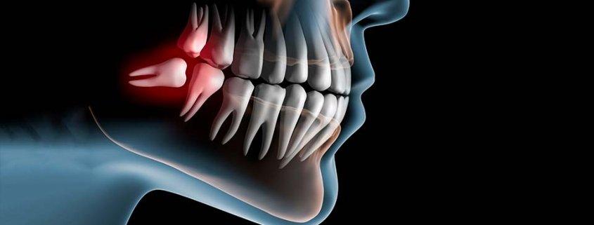 dente del giudizio tabu da sfatare studio dentistico motta rossi milano centro cadorna