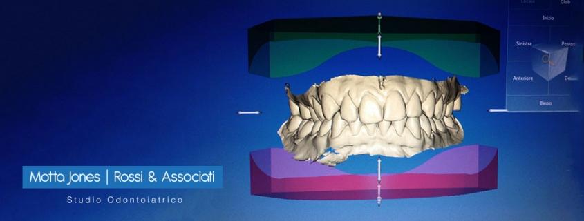 impronte dentali digitali cosa sono vantaggi utilizzo studio dentistico motta rossi milano zona centro cadorna