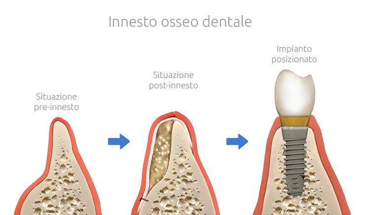 Chirurgia ossea ricostruttiva 3D - Innesto osseo dentale - Studio Dentistico Motta Jones Rossi & Associati - Milano Centro