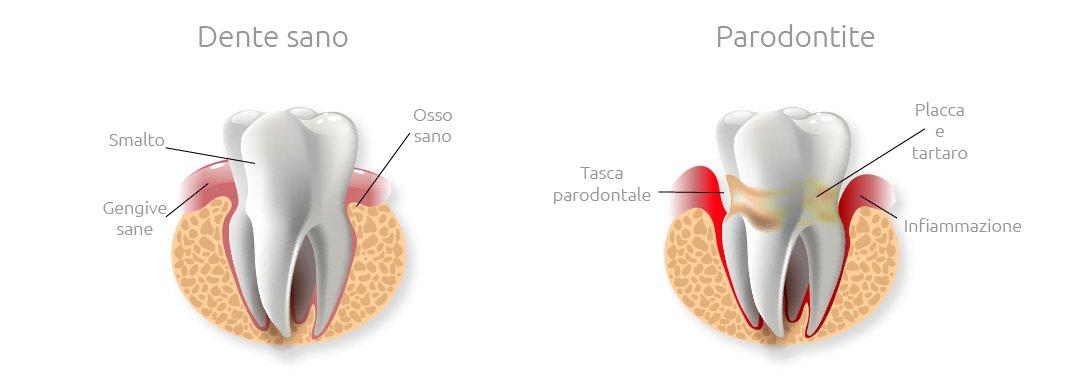 Malattia parodontale immagine dente sano e malato - Studio Dentistico Motta Jones Rossi & Associati - Milano Centro