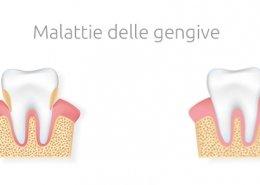 Malattie delle gengive: gengivite e parodontite -Studio Dentistico Motta Jones Rossi - Milano Centro