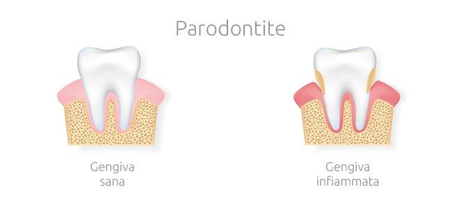 Malattie delle gengive - Parodontite: sintomi, cause e terapie per la cura -Studio Dentistico Motta Jones Rossi - Milano Centro