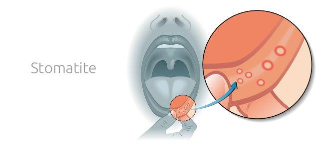 Stomatite: Sintomi, possibili cause, cure e trattamenti - Studio Dentistico Motta Jones Rossi a Milano Centro
