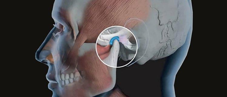Disturbi della mandibola - Studio dentistico Motta Jones Rossi e Associati - Milano centro