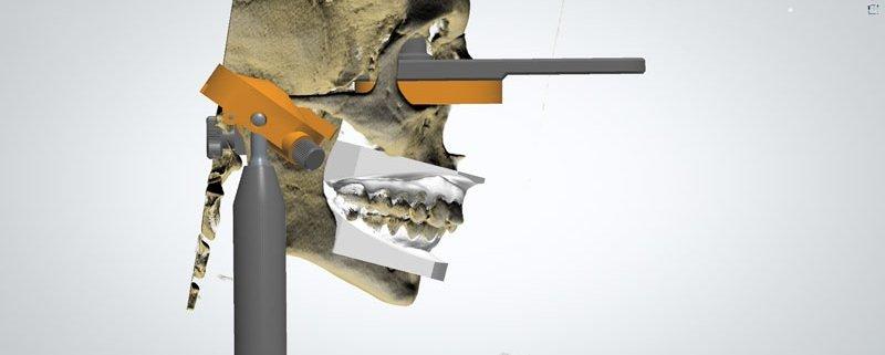cranio montato in articolatore digitale studio dentistico motta jones rossi milano centro