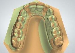 ortodonzia digitale studio dentistico motta rossi milano centro