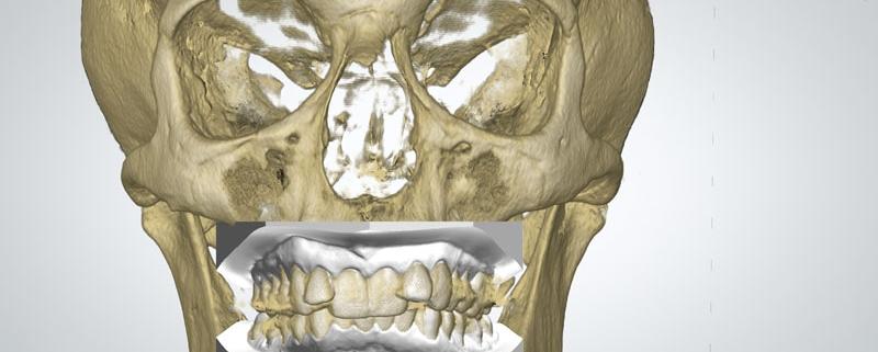 sovrapposizione cranio modelli dentali digitali studio dentistico motta jones rossi milano centro