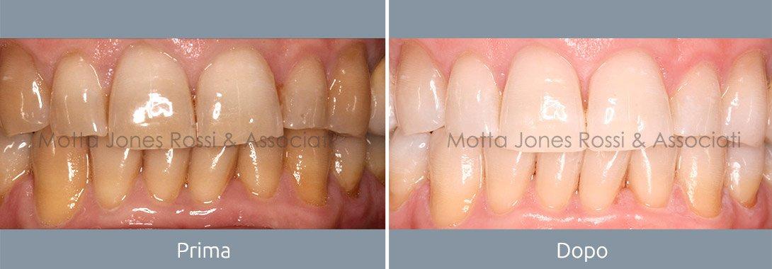 Estetica dentale - Prima e dopo - Studio Dentistico Motta Jones Rossi & Associati - Milano Centro