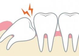 Denti del giudizio: cosa sono e come trattarli - Studio dentistico associato in centro a Milano