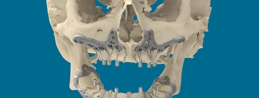 Studio Motta Jones - Rossi - Associati - impianti-dentali-stampati-3d- dentiera