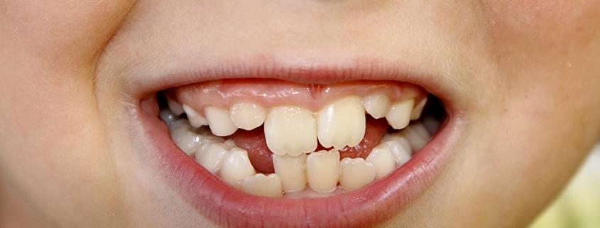 Denti Storti - Studio Motta Jones - Rossi - Associati
