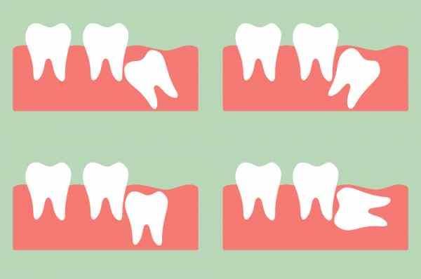 Estrazione dente del giudizio - Studio Dentistico Motta Jones, Rossi & Associati