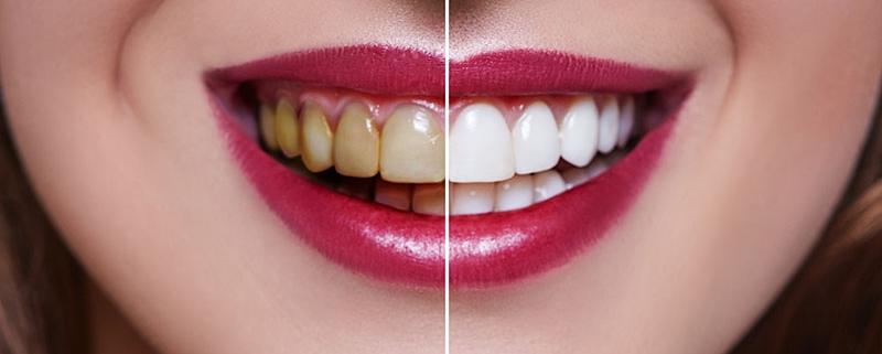 faccette dentali - Studio Dentistico Motta Jones, Rossi & Associati