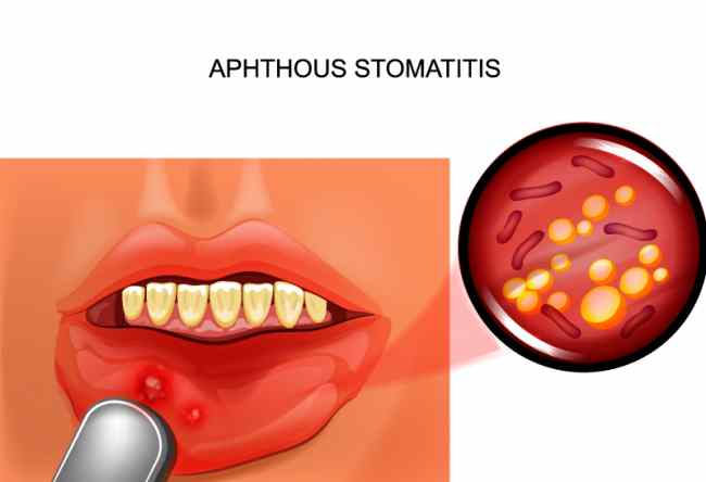 stomatite aftosa - Studio Dentistico Motta Jones, Rossi & Associati