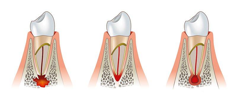Tasche parodontali e tasche gengivali - Studio Motta Jones, Rossi & Associati
