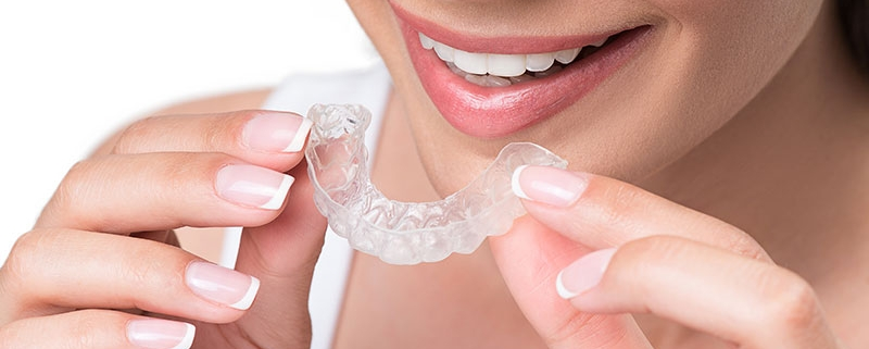 apparecchio-trasparente-denti - Studio Motta Jones, Rossi & Associati