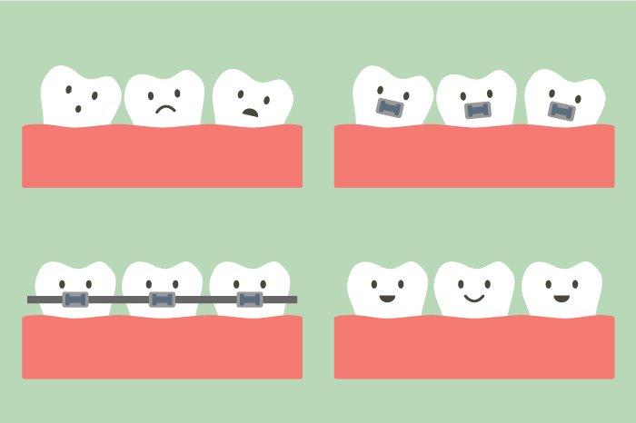 ortodonzia-milano-studio-motta-rossi