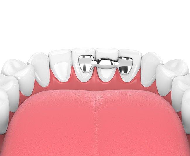 Ponte Dentale - Studio Motta Jones, Rossi & Associati