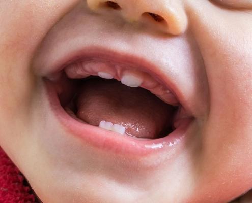 dentizione nei neonati - Studio Motta Jones, Rossi & Associati