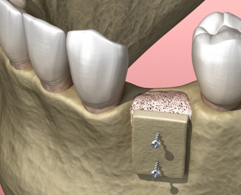 Autotrapianto dentale, quando è efficace?