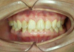 ortodonzia-invisibile-morso-profondo - Studio Motta Jones, Rossi & Associati