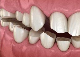 denti consumati - Studio dentistico Motta Jones, Rossi & Associati