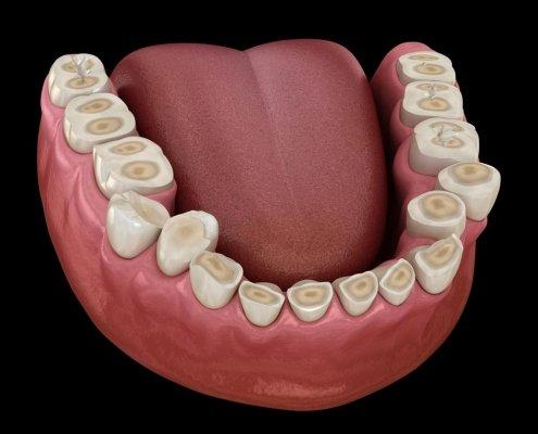 Erosione dentale da reflusso gastro esofageo - Studio Motta Jones, Rossi & Associati