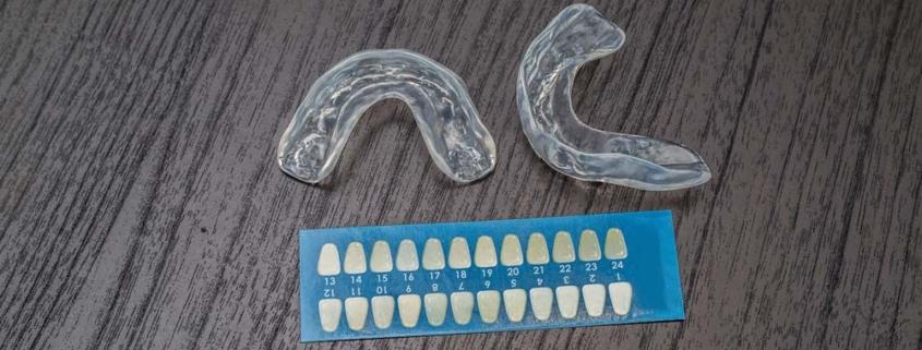 Tinte differenti dei denti - Sbiancamento dei denti - Studio Motta Jones, Rossi e Associati
