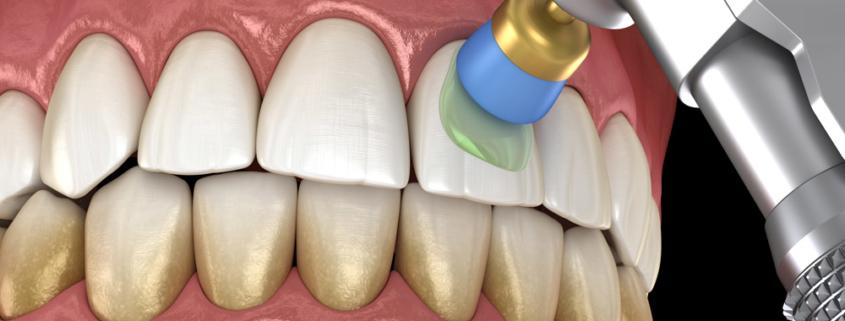 Metodi di sbiancamento dei denti - Studio Motta Jones, Rossi e Associati