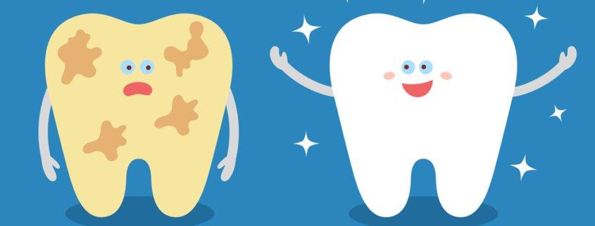 La prevenzione prima e dopo lo sbiancamento dei denti - Studio Motta Jones, Rossi e Associati